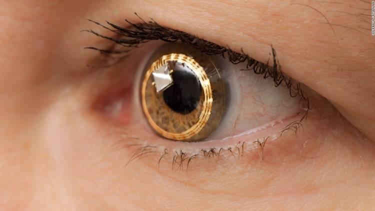 Görme sıkıntısı çekenlere çözüm: Akıllı lens